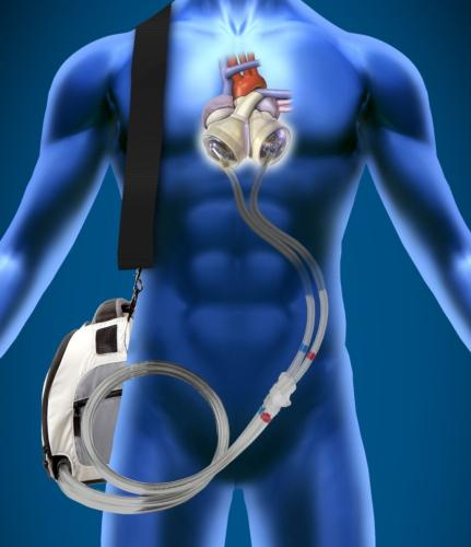 VADs Gain Popularity Artificial Hearts Remain Ideal GlobalData