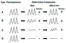 Barbeau test, radial access