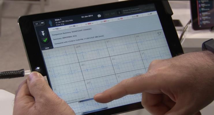 McKesson, ECG, mobile ECG app