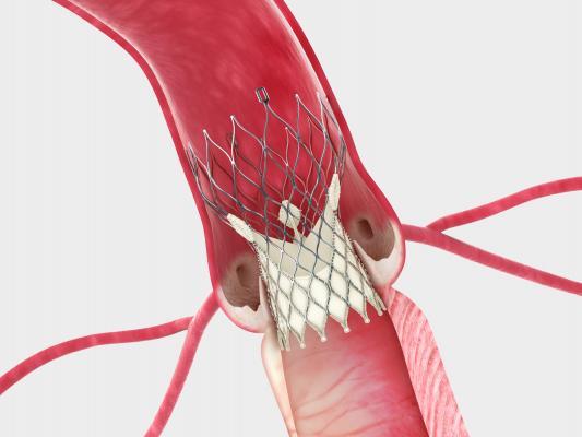 Corevalve beats surgery, ACC 2014, TAVR vs surgery