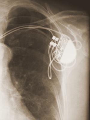 EP lab pacemakers ICD defibrillators cardioverter implantable