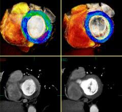 Toshiba CT Myocardial Perfusion Advanced Visualization CT Systems