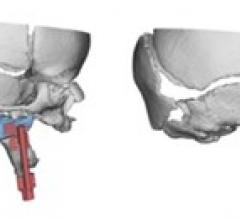 Virtual Surgical Planning 3-D Planning Systems Advanced Visualization