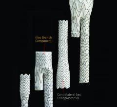 Gore Excluder AAA Stent Graft