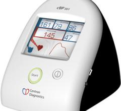 SunTech Centron Diagnostics Central Blood Pressure Technology