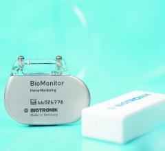 Biotronik, BIOGUARD-MI Study, BioMonitor, cardiac arrhythmias, early detection, remote monitoring