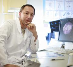 heart disease risk, radiotherapy patients, cardioncology, Detroit Medical Center study, DMC