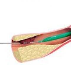 Boston Scientific, Fetch 2 aspiration catheter, Class 1 recall