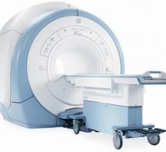 mri systems rsna 2013 GE healthcare dv24.0 silent scan software