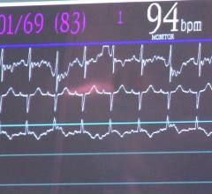 Cheetah Medical, Starling SV, hemodynamic monitoring system, noninvasive