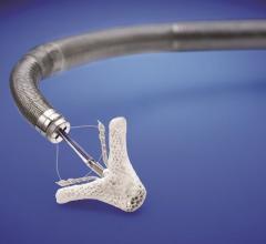 MitraClip, Abbott, transcatheter mitral valve repair, FDA approval