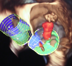 AATS 2016, tricuspid regurgitation, post mitral valve repair, Tirone E. David, atrial fibrillation