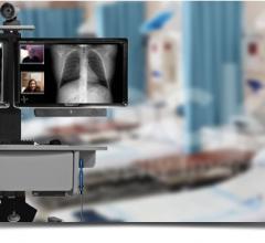 Nebraska Medicine, telehealth, Google Glass, video conferencing, ResolutionMD