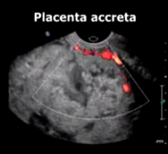 interventional radiology, placenta accreta, RSNA, study