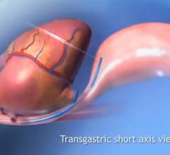ImaCor ClariTEE Zura EVO hTEE Ultrasound transesophageal TEE Cardiac