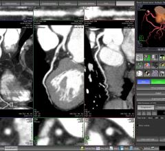 coronary CT angiography, CCTA, alcohol consumption, CAD, coronary artery disease, RSNA 2016