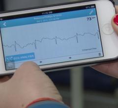 AliveCor, Preventic Solutions, cloud, analytics, ECG monitoring, remote