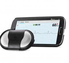 patient monitors ecg software mobile devices alivecore heart monitor
