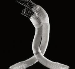 Lombard Medical, acquires, Altura Medical, AAA, endovascular aneurysm repair, EVAR, endovascular stent graft