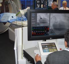 Corindus, Corpath, radiation dose monitoring, cath lab, vascular robotic system