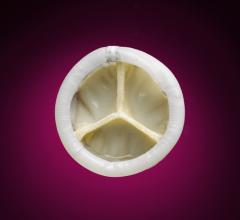 Direct Flow Medical TAVR System, DISCOVER post-market study, real-world results, TCT 2015