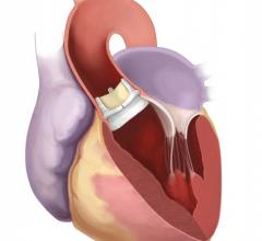 Northwestern Medicine, Edwards Lifesciences, Intuity Elite suturless aortic valve, first in Illinois