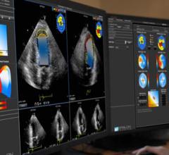 Epsilon Imaging EchoInsight Cardio Oncology Echo Cardiac Ultrasound
