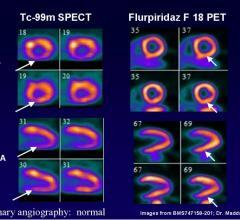 Lantheus, flurpiridaz F 18, ICNC12, SPECT, CAD, PET, MPI, myocardial perfusion