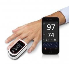 Masimo, MightySat Rx, fingertip pulse oximeter, SpO2, pulse rate