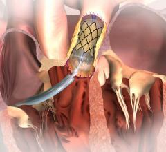 Melody valve, FDA approval, PMA, pulonary valve