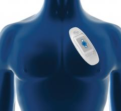 Medtronic SEEQ Wearable Cardiac Monitoring System United States Launch