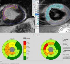 Pie Medical Imaging, CAAS MRV, MRI, cardiac perfusion