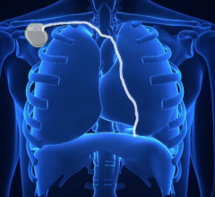 Respicardia, Remede, pacemaker for sleep apnea, central sleep apnea treatment