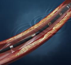 Balloon catheters, cath lab, peripheral artery disease (PAD), Lithoplasty