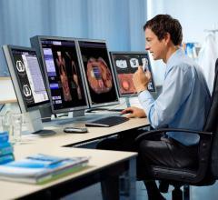 Siemens Healthineers, SNMMI '16, molecular imaging, syngo.via, Biograph Horizon PET/CT, mobile configuration