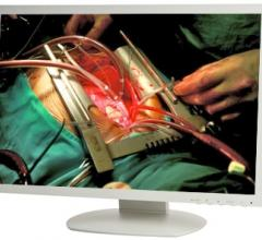 TRU-Vu Monitors, 24-inch, surgical, monitors, touch screens, MM-24 Series, MMZBTP-24 Series
