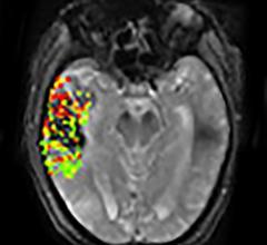 DEFUSE-2 study, MRI, brain bleeding risk, post-stroke treatment, NIH