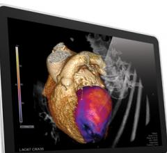 Vital Images VitreaExtend Advanced Visualization Toshiba America Medical Systems