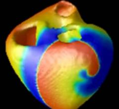 CyberHeart, Stony Brook, NSF grant, $4.2 million, Scott Smolka