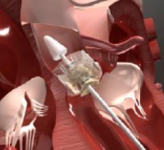 Heart valve repair, Trinity Transapical TAVI system