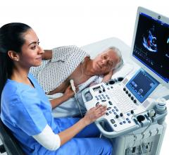 cardiac ultrasound, ASE, American society of echo