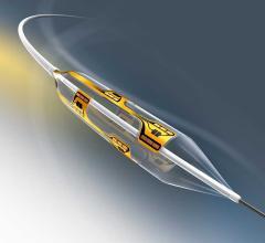 Vessix Renal Denervation System, REDUCE-HTN: REINFORCE, high blood pressure