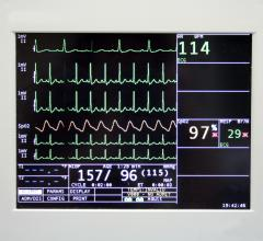 Cerner, Mortara, CareAware Waveform Management, ECG, monitoring, cardiac PACS