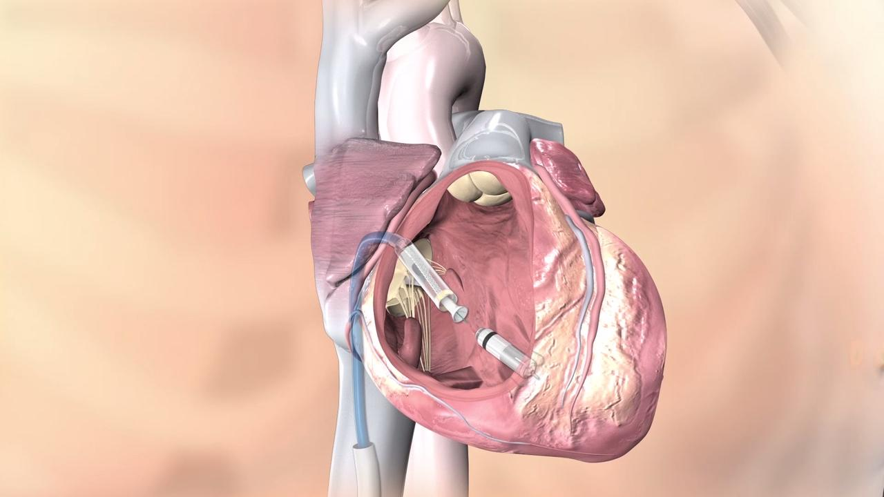 Video How To Implant The Micra Leadless Pacemaker Daic
