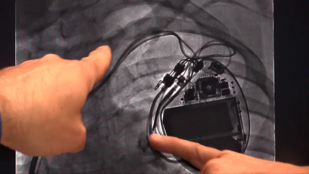 VIDEO: EP Lead Extraction Strategies | DAIC
