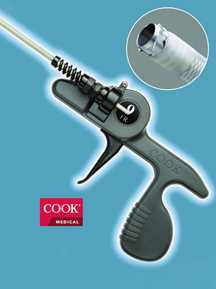 The Cook Evolution lead extraction system.