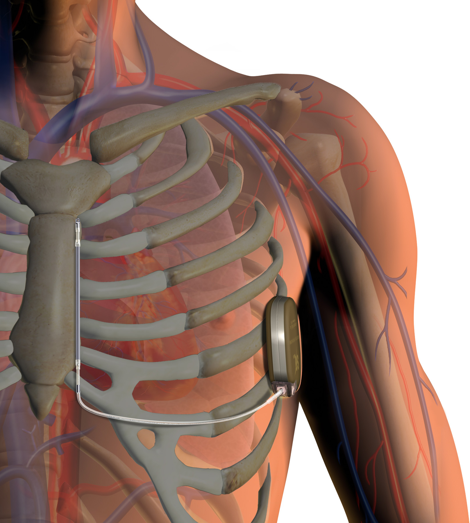 Advances In Implantable Cardioverter Defibrillator Icd Technology