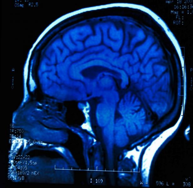 FDA says gadolinium retention in the brain is not a safety issue