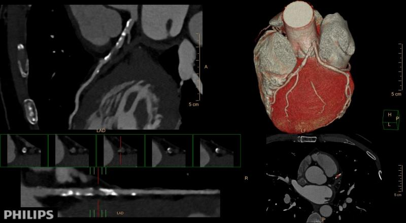 CT angiography, CTA, coronary CT, cardiac CT, SCCT, society of cardiovascular computed tomography, cardiac imaging