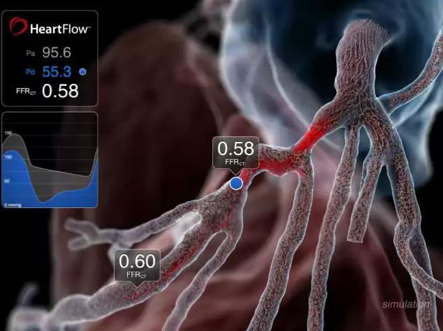 FFR-CT, HeartFlow, PLATFORM trial, ESC 2015, ICA, fractional flow reserve, computed tomography